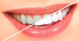 diş beyazlatma tedavisi incirli, diş beyazlatma bahçelievler, bahçelievler diş beyazlatma tedavisi