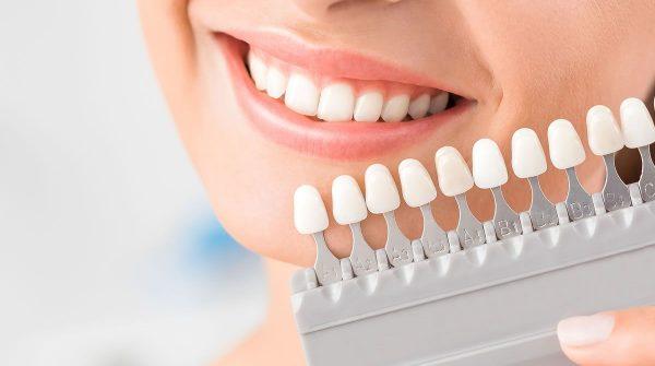 bahçelievler diş beyazlatma tedavisi, diş beyazlatma tedavisi bahçelievler, bahçelievler estetik diş hekimliği