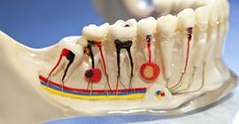 incirli kanal tedavisi, kanal tedavisi incirli, bahçelievler kanal tedavisi, kanal tedavisi bahçelievler, endodonti bahçelievler, incirli endodonti