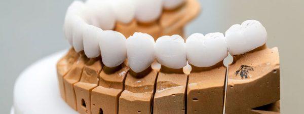 bahçelievler protez diş tedavisi, diş tedavisi protez, protez diş tedavisi bahçelievler