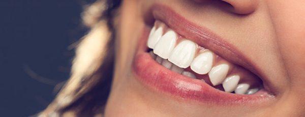 klinik afm diş beyazlatma tedavisi bahçelievler, bahçelievler diş beyazlatma tedavisi