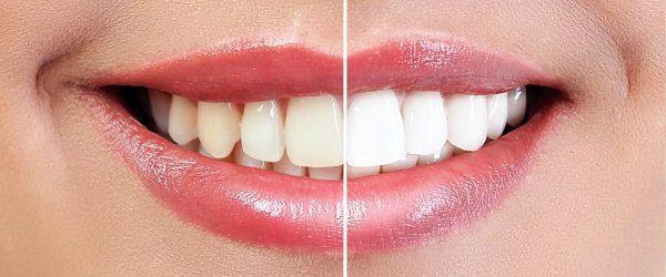 diş beyazlatma tedavisi bahçelievler, bahçelievler diş beyazlatma tedavisi