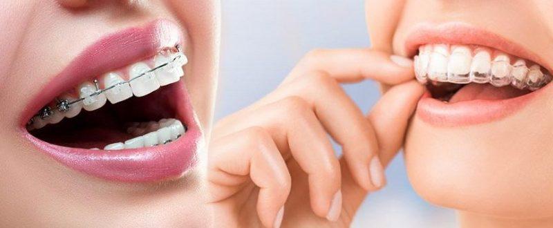 bahçelievler şeffaf plak uzman diş hekimi, diş teli tedavisi bahçelivler