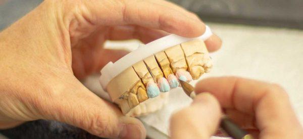 klinik afm protez diş tedavisi, klinik afm bahçelievler protez diş tedavisi