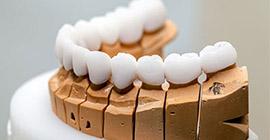 Protez Diş Tedavisi Bahçelievler, bahçelievler protez diş tedavisi, protez diş tedavisi incirli, incirli protez diş tedavisi