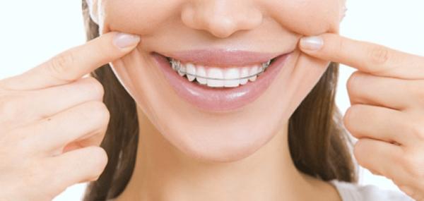 Ortodonti tedavisi bahçelievler, Bahçelievler ortodonti tedavisi hizmeti