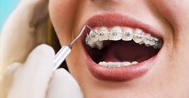 incirli ortodonti tedavisi, ortodonti tedavisi bahçelievler, bahçelievler ortodonti tedavisi, şeffaf plak ve diş teli tedavisi bahçelievler
