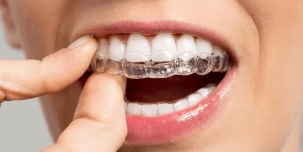 bahçelievler şeffaf plak tedavisi, şeffaf plak uzman diş hekimi