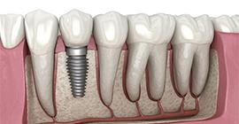 implant tedavisi bahçelievler, bahçelievler implant tedavisi, implant bahçelievler, incirli implant tedavisi